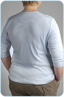 Excessive Sweating of the Back, Abdomen, and Chest